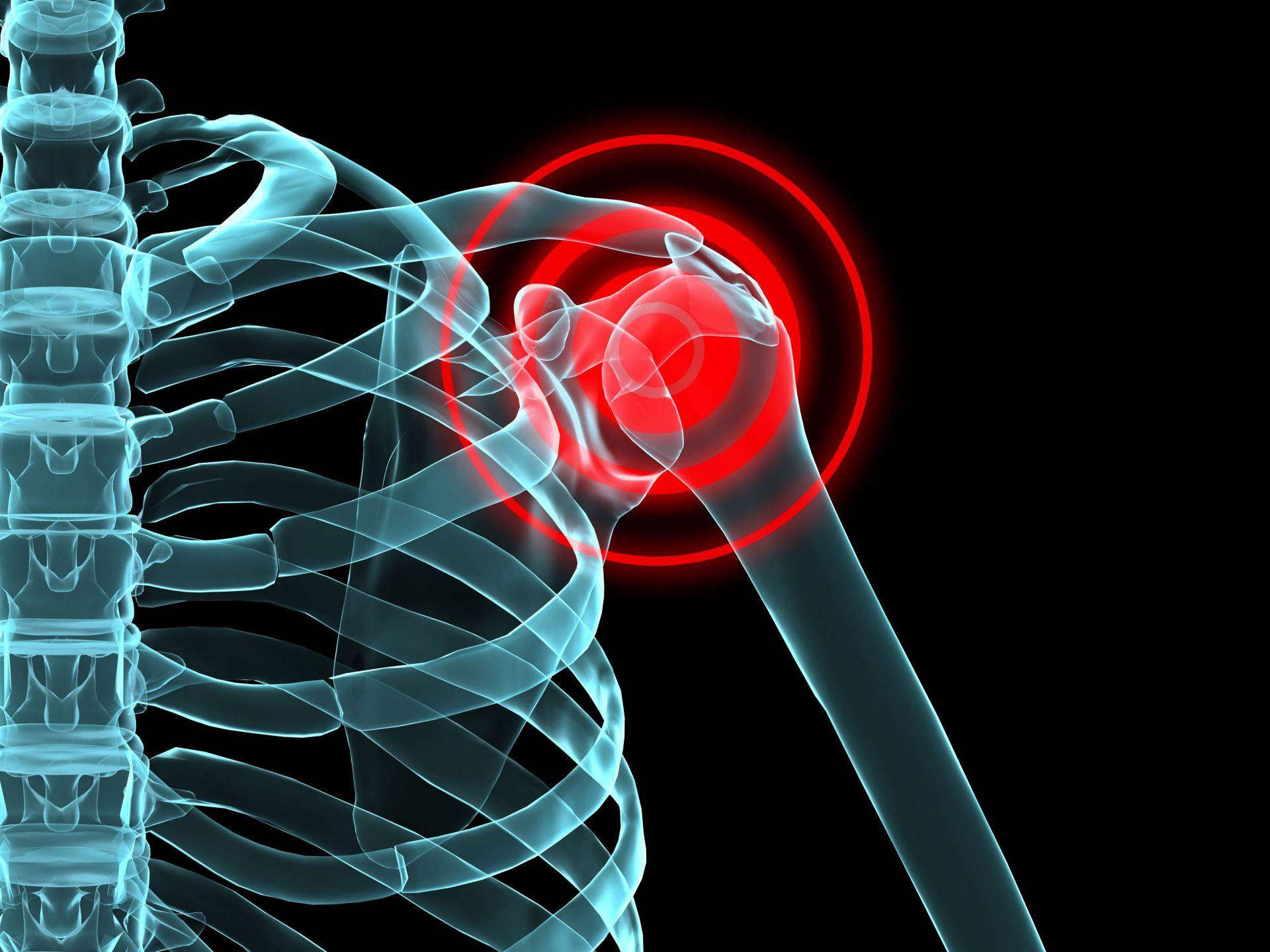 Graavi artroosi