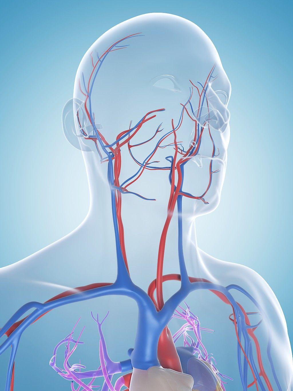 Aortan Dissekoituma
