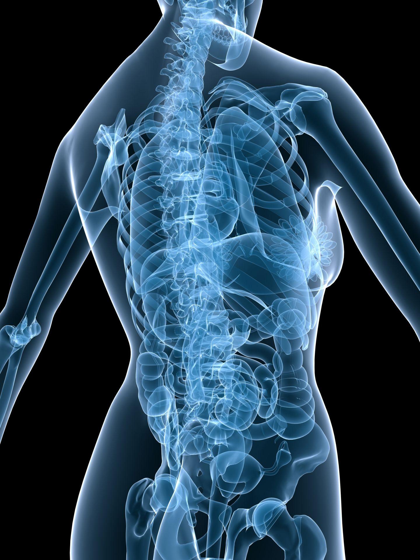 Nilkkamurtuma ja osteoporoosi