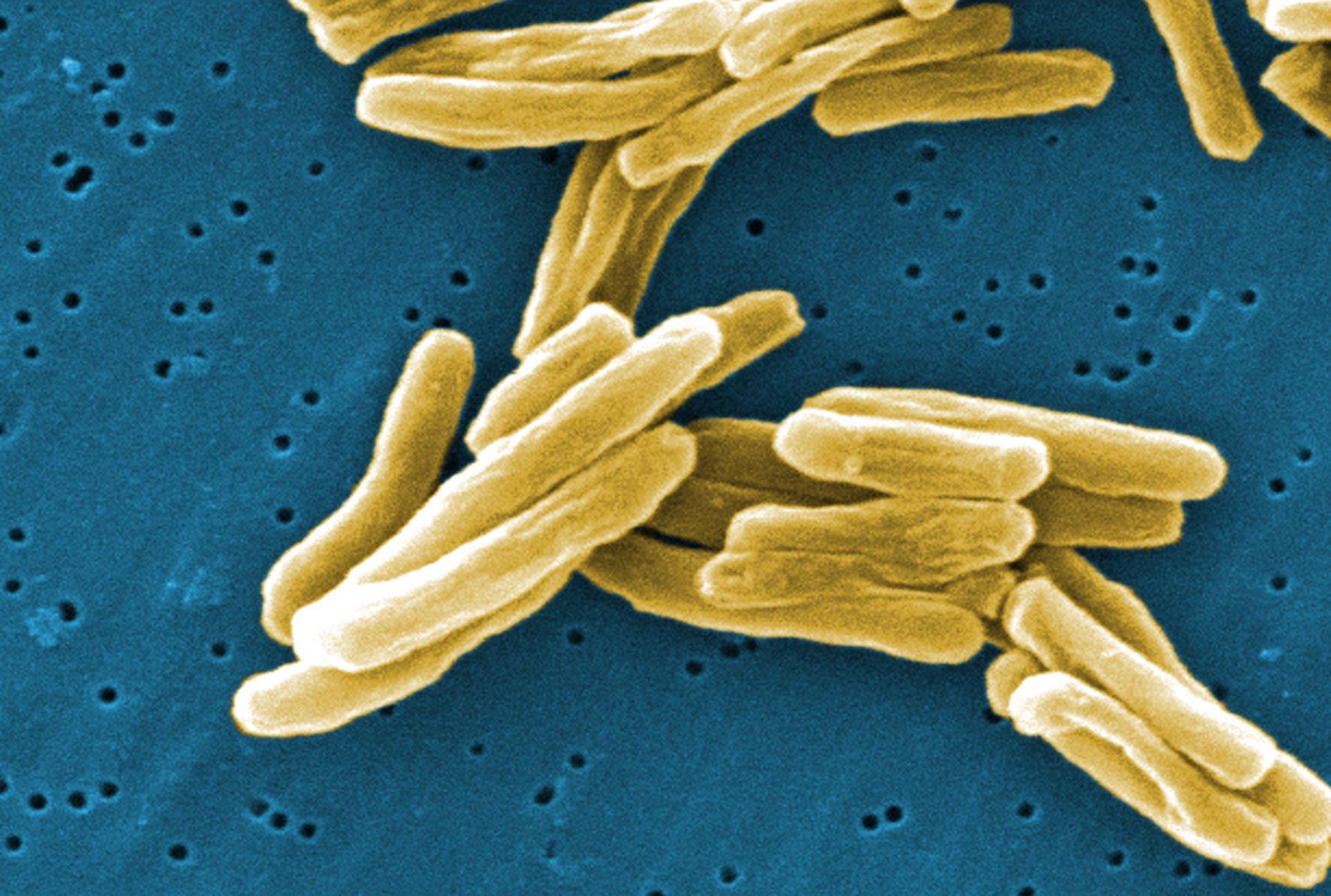 Tuberkuloosi Verikoe