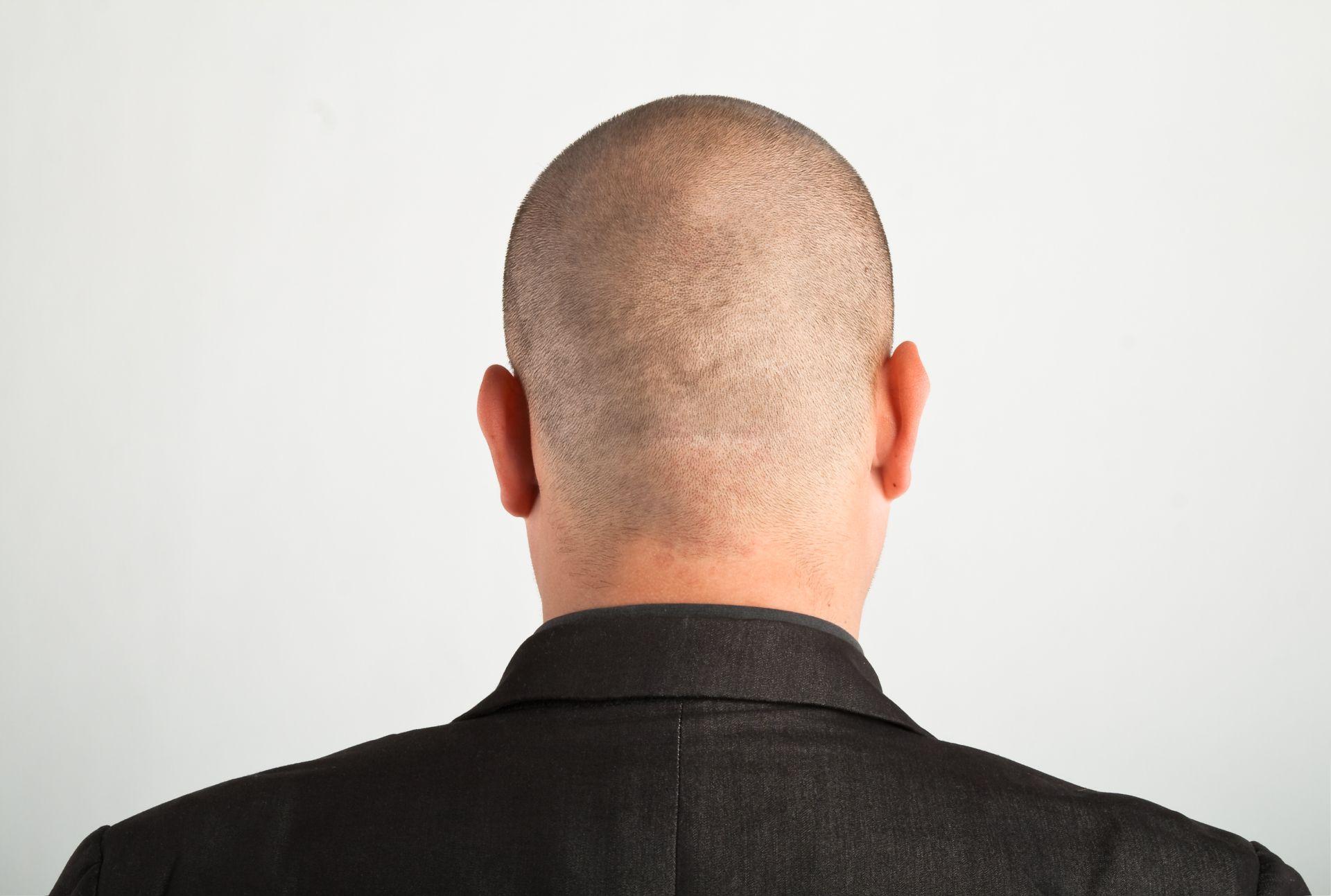 Как сделать кантик на шее